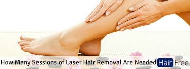how many sessions of laser hair removal