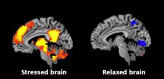 Image result for stressed brain