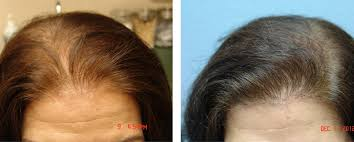 hair loss doctors tops 2016 hairstyle