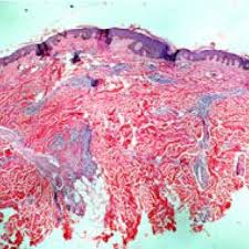 erythema multiforme like skin lesions