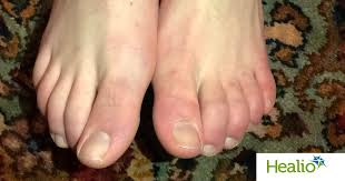 covid toes tracking dermatological