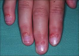 proximal nail fold ling best nail