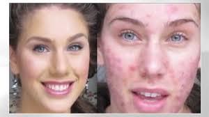 acne scarred model undergoes