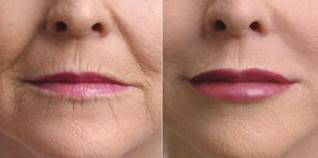 vertical lip lines smokers lines