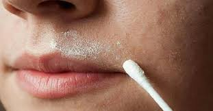 Upper Lip Hair Removal at Home Naturally - [ Painless Treatment ]