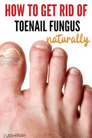 natural remedy for toenail fungus