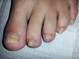 nail fungus and how to treat it