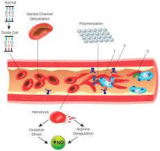 sickle cell disease genetics