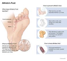 athlete s foot tinea pedis