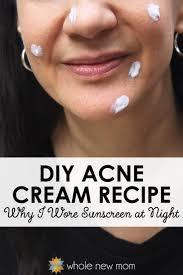 diy acne cream homemade acne treatment