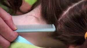 3 ways to check a child s hair for lice