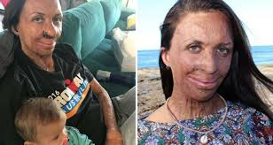 Turia Pitt shares photo to Instagram ...