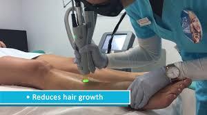 laser hair removal from 9 australian