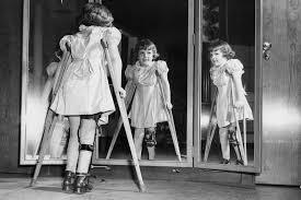 Wiping Out Polio: How The U.S. Snuffed Out A Killer : Shots ...
