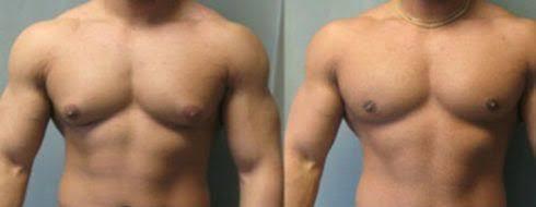"""Resultado de imagem para cirurgia de ginecomastia pelo sus"""""""