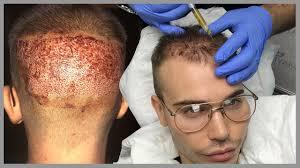 my uk hair transplant surgery