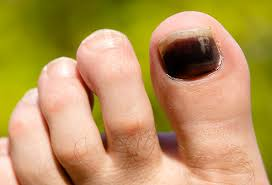 pictures of toenail colors and what