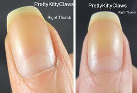treatment of dry skin ana explains