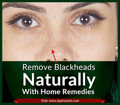 remove blackheads naturally with these
