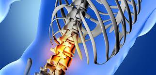 Doenças ligadas à dor nas costas