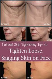 sagging skin problem what all you need
