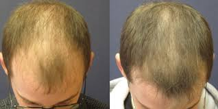 hair restoration with prp guilford ct