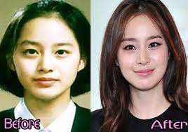 are the kim tae hee plastic surgery