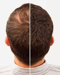 caboki hair fiber black colour hair