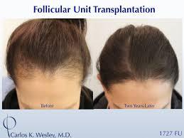 what getting a hair transplant enls