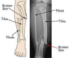 Open Fractures - OrthoInfo - AAOS