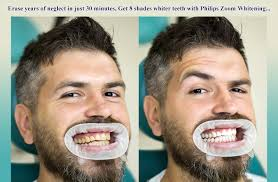 teeth whitening conquer
