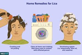 how head lice is treated for good
