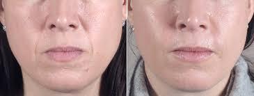 Kết quả hình ảnh cho Autologous fat grafting of cheek