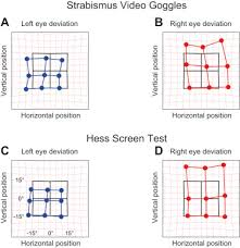 Strabismus Measurements With Novel Video Goggles Sciencedirect