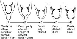 How To Check Your Own Cervix