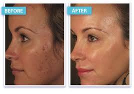 Before And After Laser Skin Rejuvenation Laser Skin