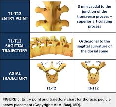 Spine Levels Chart Figure 5 From Freehand Thoracic Pedicle Screw Placement
