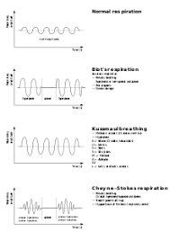 Abnormal Breathing Patterns Inspiration Biot's Respiration Wikipedia