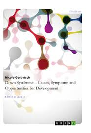 down syndrome causes symptoms and opportunities for development  down syndrome causes symptoms and opportunities for development