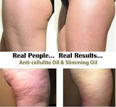 Oliven Öl gegen Cellulite (haut, straffen)