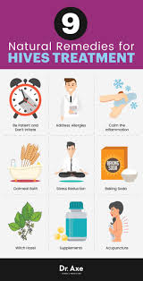 Hives Treatment: 9 Natural Remedies for Soothing Relief | Health ...