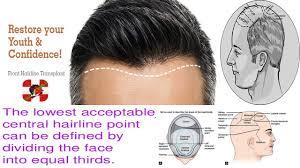 Hair Line Design Transplant Hairline Design In Hair Transplant Hair Transplant