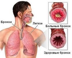 Бронхиальная астма у взрослых симптомы и лечение Дыхательная система
