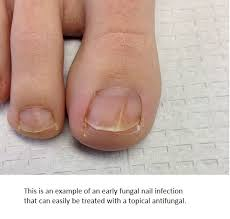 early se fungal infection of a toe nail