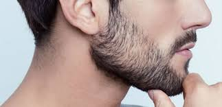 زراعة شعر اللحية