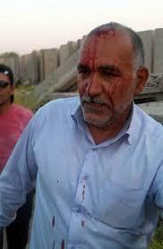 Résultats de recherche d'images pour «حمله به خانواده ها با سنگ در اشرف»