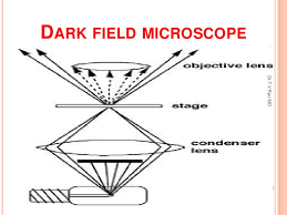 dark field microscopy define dark field microscopy dark field microscope dark field