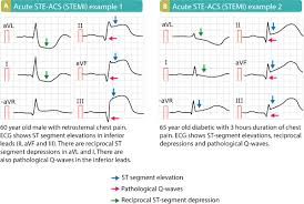 Classification Of Acute Coronary Syndromes Acs Acute Myocardial