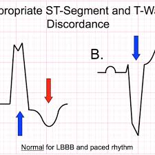 Ecg Rate Determination Chart Large Block Method To Calculate Heart Rate Ecg Medical