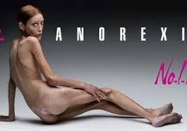 """Résultat de recherche d'images pour """"non a anorexie"""""""